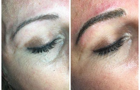 Microblading & Microshading | Alite Laser Hair Removal