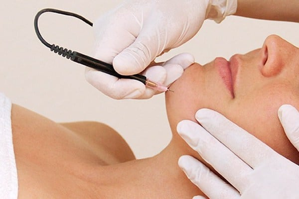 Electrolysis Hair Removal Everything You Need To Know Alite